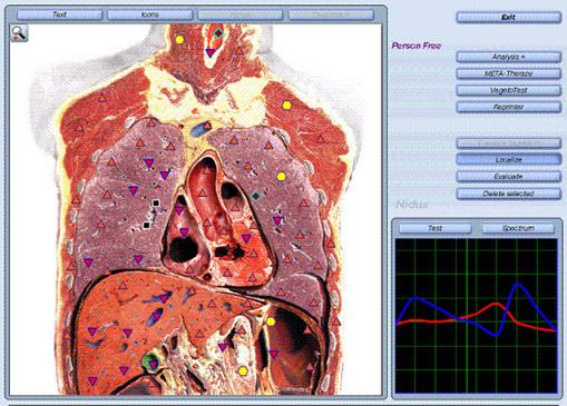 אבחון NLS-בדיקה ממוחשבת