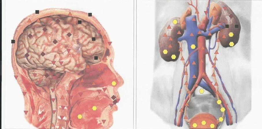 תוצאות לדוגמא של אבחון NLS